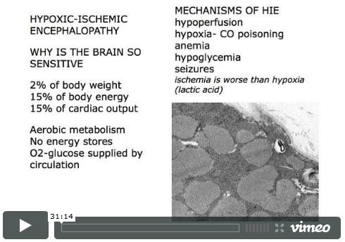 Hypoxic and Ischemic Encephalopathy